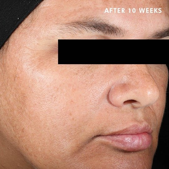 Skinceuticals Canada After